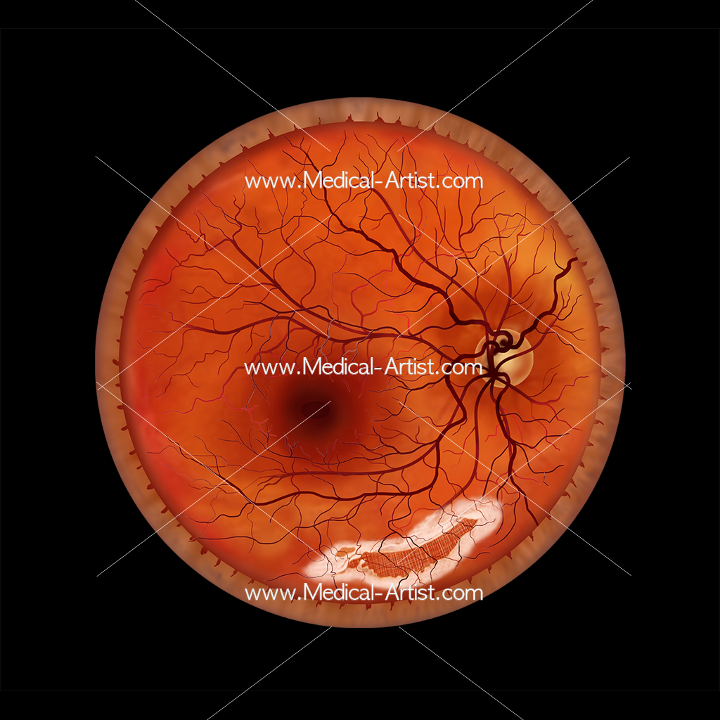 Ophthalmology myopic degeneration illustration