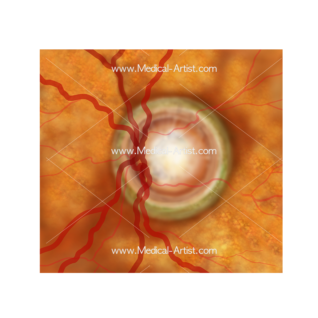 Ophthalmology optic nerve drusen