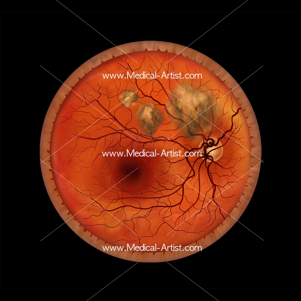 Opthalmology retinal scar illustration