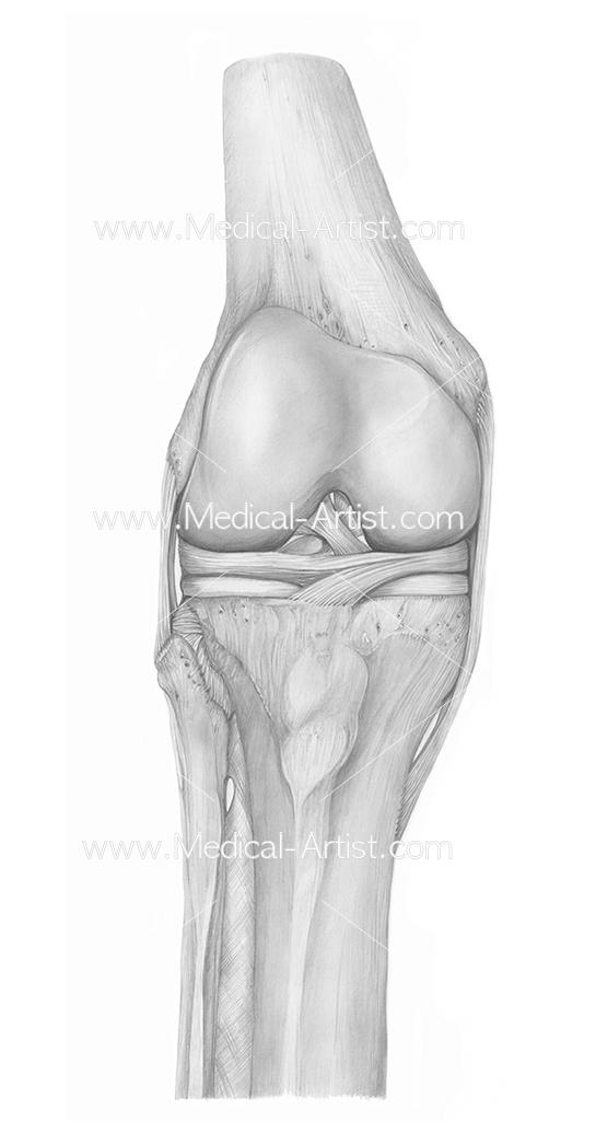 Orthopedic Surgery Illustrations Pelvis Knee Surgery Medical