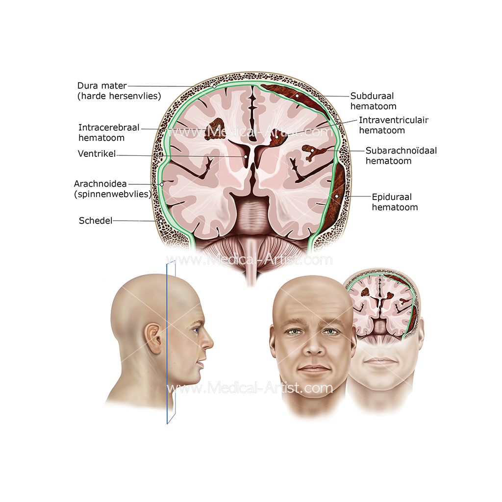 Intracranial haemorrhage orientation brain