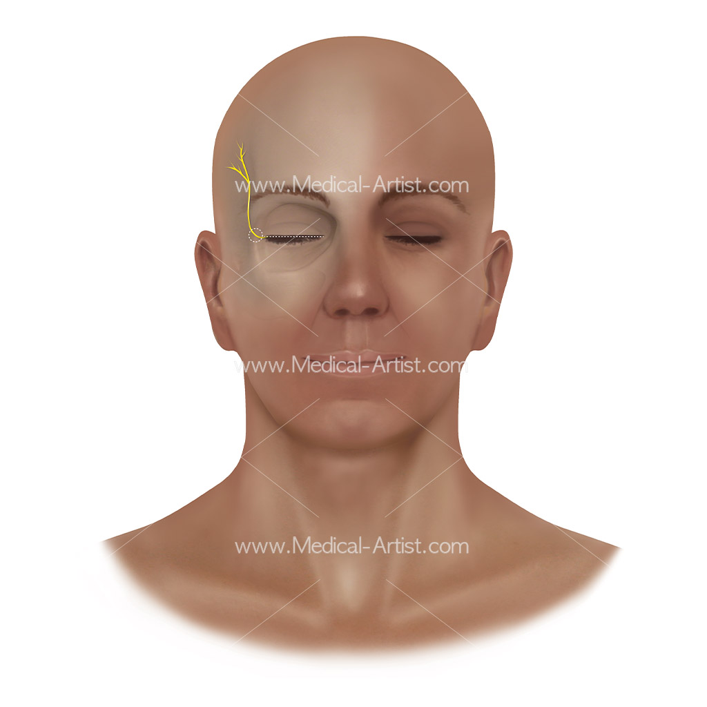 Zygomaticotemporal nerve