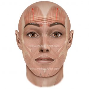 Frontalis and horizontal forehead creases