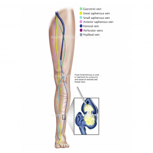 Foam Sclerotherapy Treatment